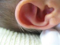 ear refle