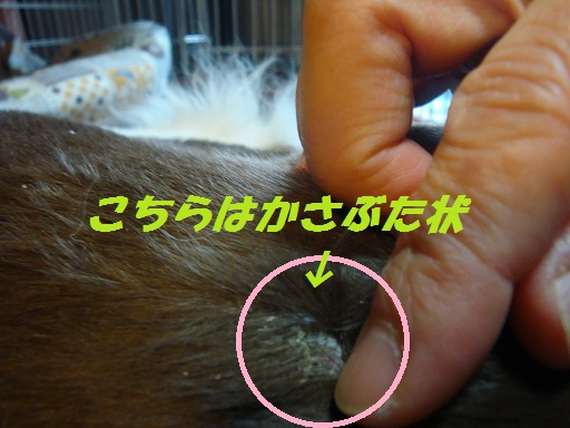 脂漏性皮膚炎 3
