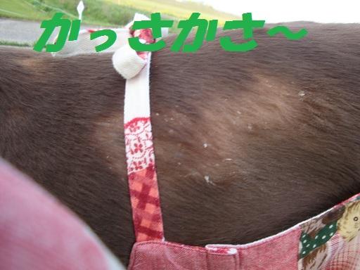 脂漏性皮膚炎 4