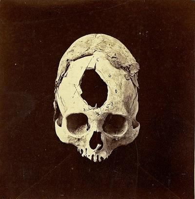 Third-skull.jpg