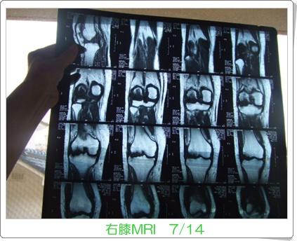 MRI-2