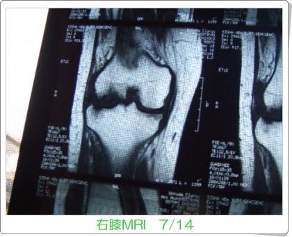 MRI-1.jpg