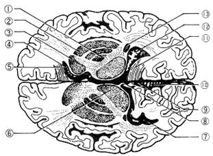大脳基底核の横断画像