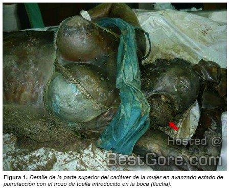 postmortem-fetal-extrusion-photos-01.jpg