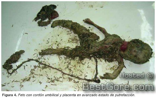 postmortem-fetal-extrusion-photos-03.jpg