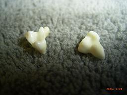 はな乳歯.JPG