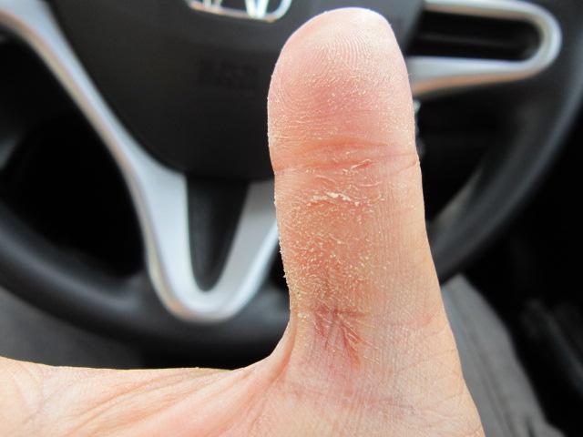 ザラザラしたハネハネ星人の親指(笑)