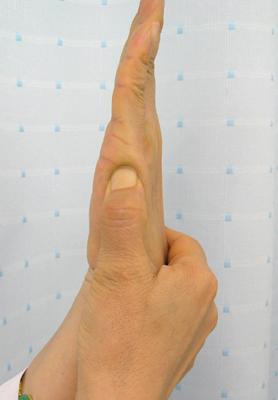 大阪梅田針灸院小指側面つぼ