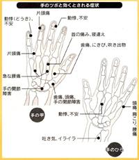 大阪梅田針灸院つぼのイラスト