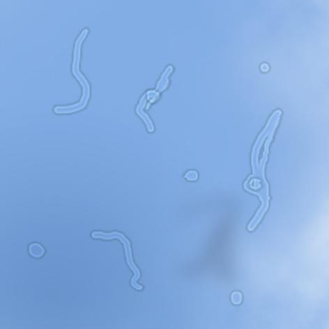 飛蚊症の写真