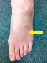 足の浮腫み3