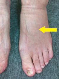 足の浮腫み1