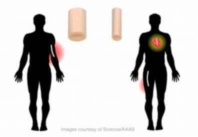 bioengineered vein2