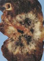 癌が確認された肺