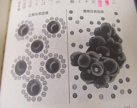 異常な赤血球
