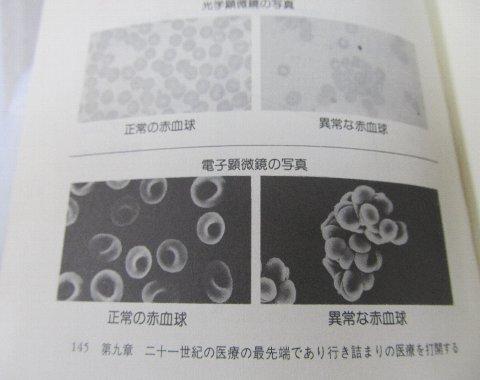 赤血球の役割が出来にくくなる