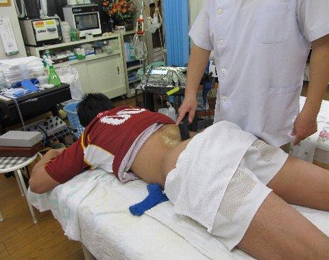 腰痛に超音波を用いる