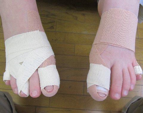 中島さんの足