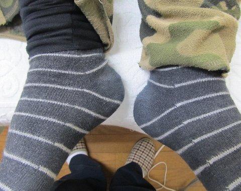 異常な下肢の長さ
