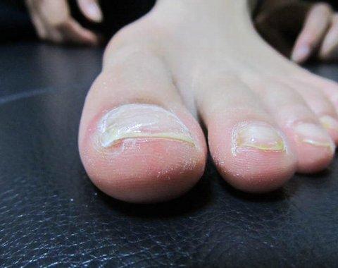 巻き爪の治療後