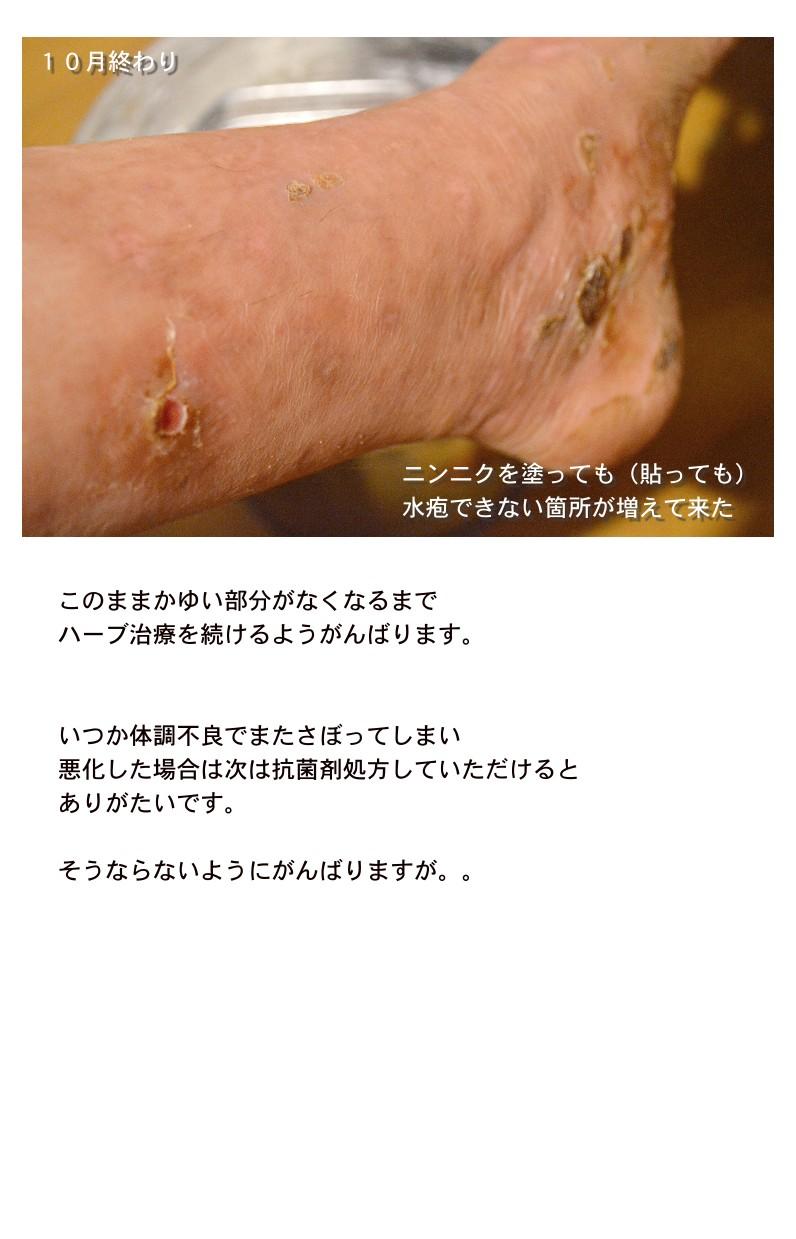 131104-keiou3.jpg