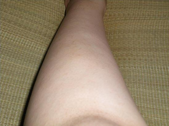 7回目の膝下脱毛 23日後