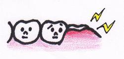 親知らず 歯ぐきの腫れ