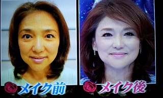 s-aki mizusawa before after