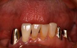 義歯をはずした状態