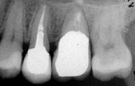 歯牙移植後 現在