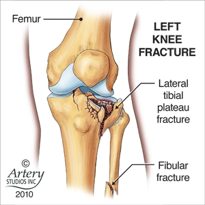 knee-injury1.jpg