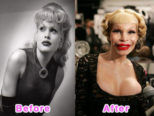 celebrity_plastic_surgery_640_03.jpg