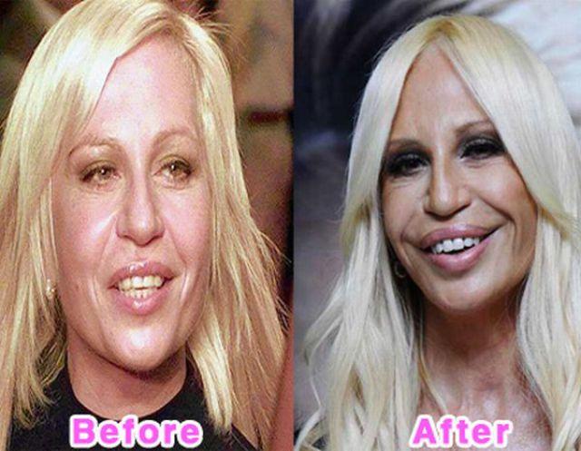 celebrity_plastic_surgery_640_05.jpg
