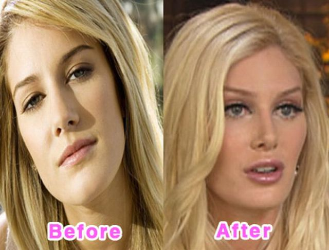 celebrity_plastic_surgery_640_07.jpg