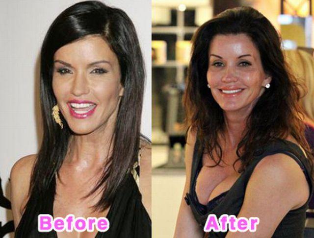 celebrity_plastic_surgery_640_09.jpg