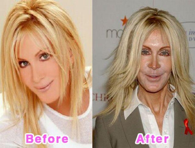 celebrity_plastic_surgery_640_10.jpg