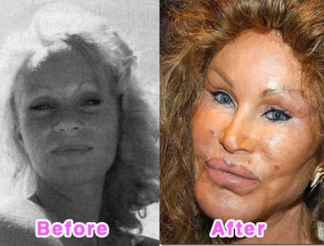 celebrity_plastic_surgery_640_11.jpg