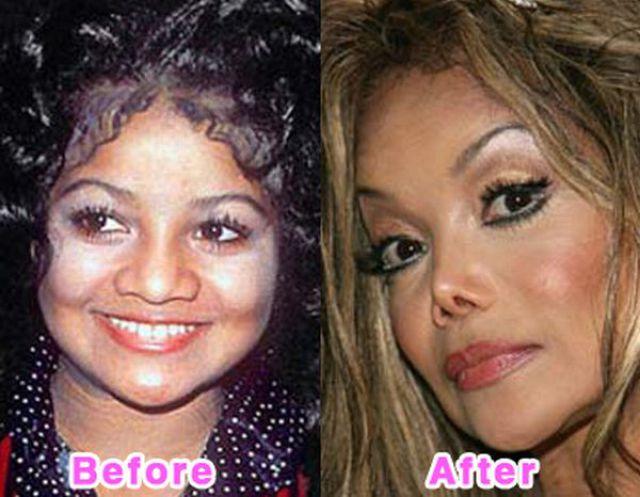 celebrity_plastic_surgery_640_12.jpg