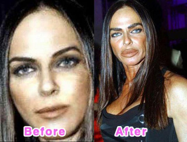 celebrity_plastic_surgery_640_14.jpg