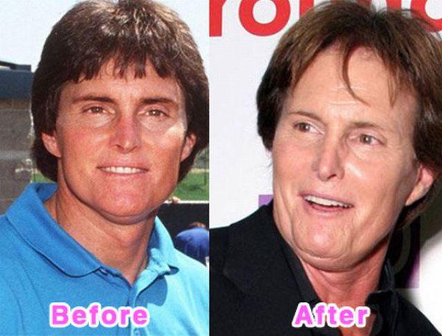 celebrity_plastic_surgery_640_15.jpg