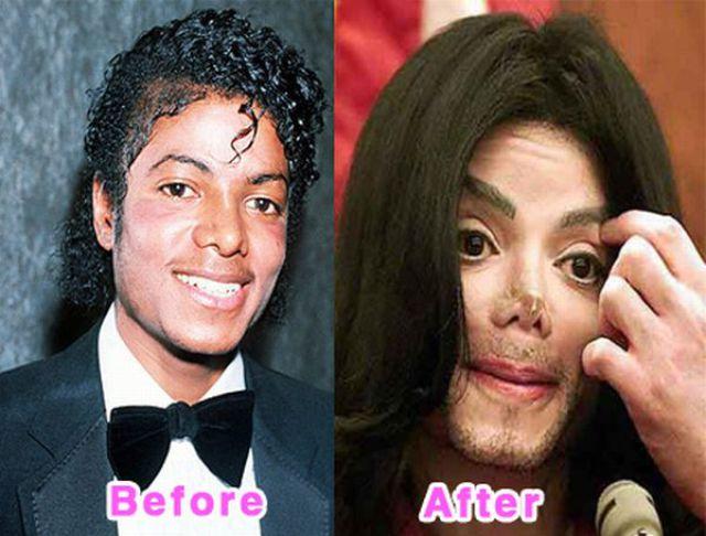 celebrity_plastic_surgery_640_18.jpg