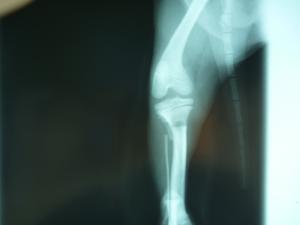 骨折 X-RAY2