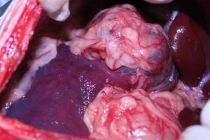 脾臓腫瘍 腹内