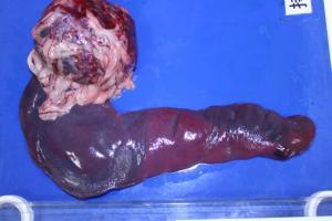 脾臓腫瘍 病理