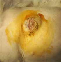 乳腺癌の局所転移2