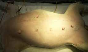 犬の片側乳腺全摘出術2