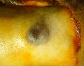 犬の毛包由来の腫瘍2