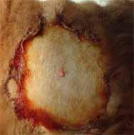 犬の毛包由来の腫瘍3