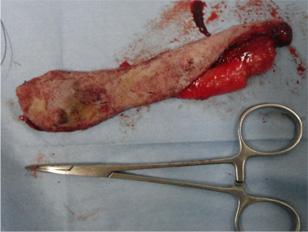 乳腺腫瘍と避妊の同時手術3