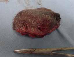 精巣炎・精巣上体炎・陰嚢膿瘍7